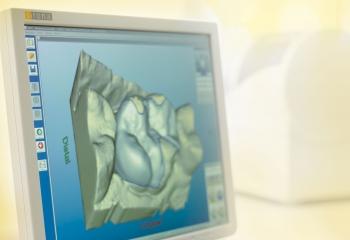 Cerec 3D Aufnahmeeinheit (Bildquelle: Sirona dental Systems)